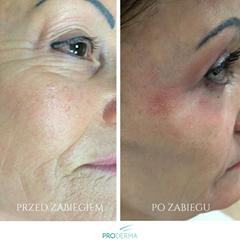 Efektywni dermatolodzy z Prodermy